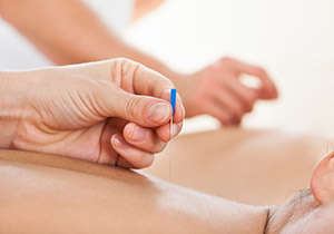 Formation kinesitherapie Dry Needling