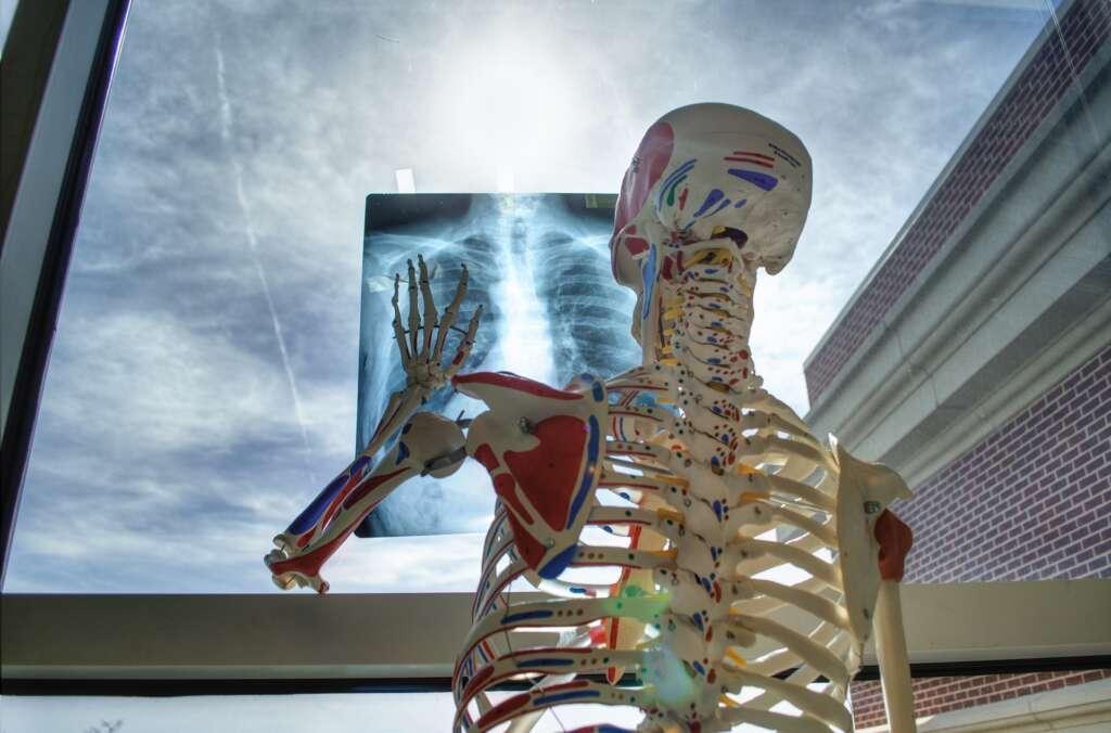 La clé pour la prévenir les troubles musculo-squelettiques des kinésithérapeutes et ostéopathes